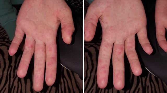 vörös kéz megjelenésének okai a kézen