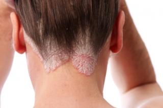 Pikkelysömör (psoriasis) kezelése UVB fényterápiával / Mátyásföld Klinika
