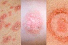 Pöttyök, foltok, csíkok: tünetek a bőrön - dongohaz.hu