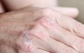 vörös foltok a kezeken a gőzfürdő után