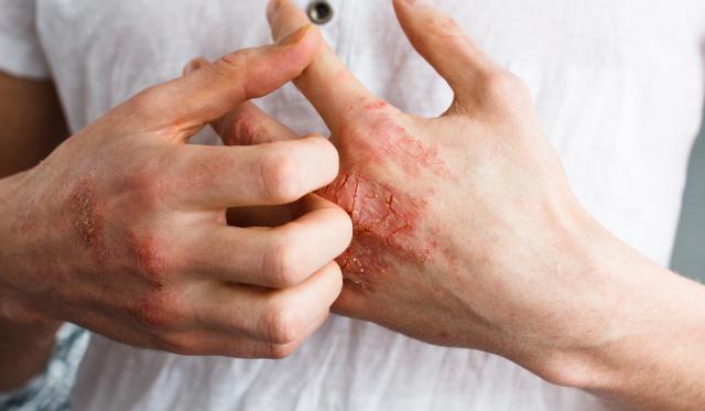 Házi gyógymódok ekcéma és pikkelysömör ellen