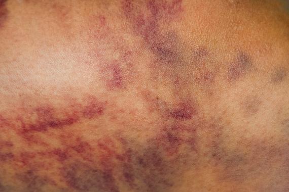 vörös foltok a lábon limfosztázissal