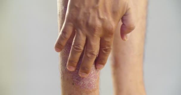 psoriasis vulgaris progresszív stádiumú kezelés krónikus pikkelysömör kezelése