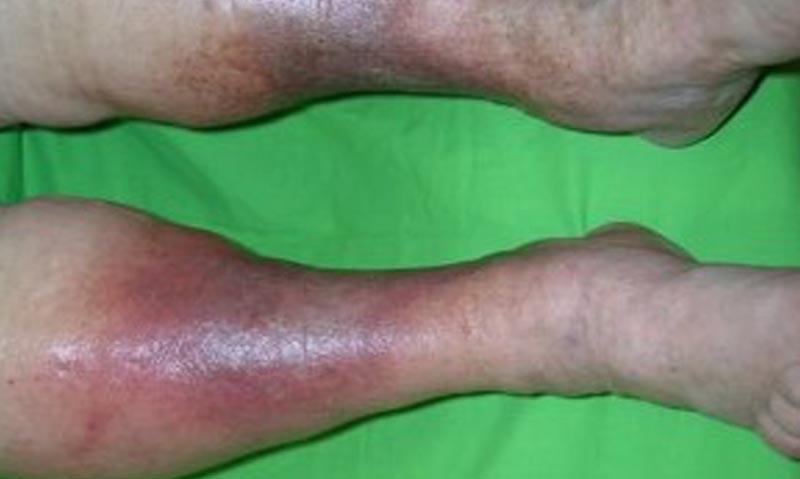 vörös folt az alsó lábszáron és viszket)