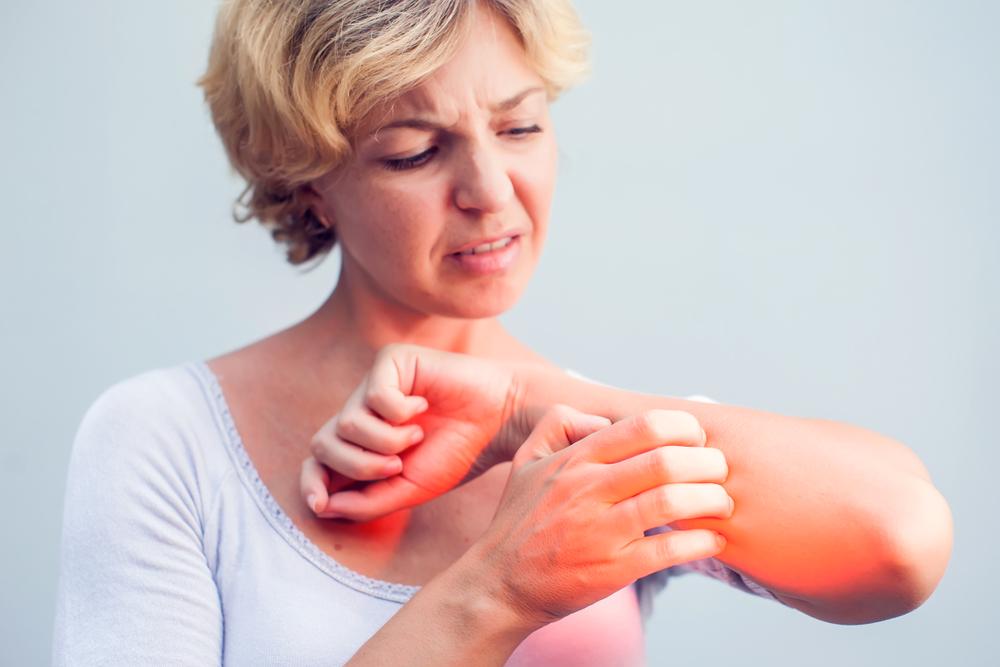 vörös foltok az ok bőrén valerian pikkelysömör kezelése