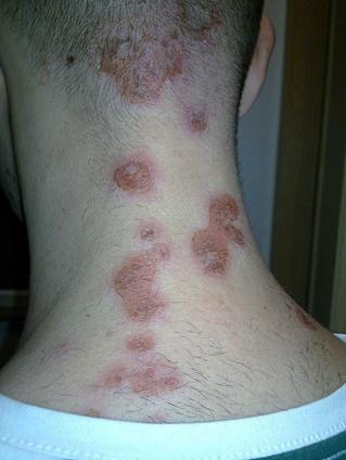a nyakán egy vörös folt viszket)