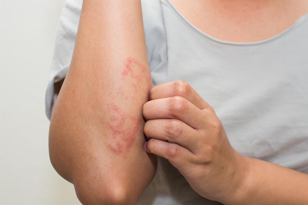 pikkelysömör a kezeken otthoni kezels kenőcsök pikkelysömörre D-vitaminnal