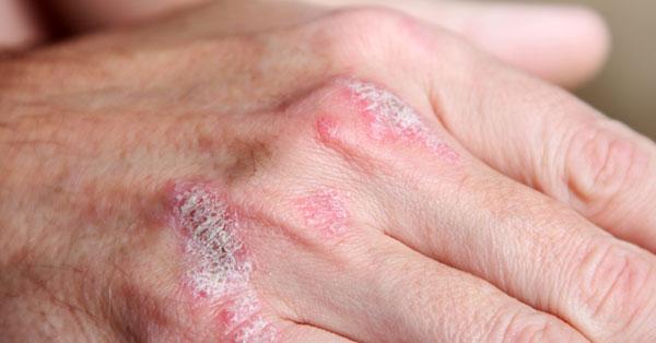 erős gyógymód a pikkelysmr ellen vörös foltok és apró pattanások az arcon