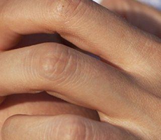vörös kéz megjelenésének okai a kézen)