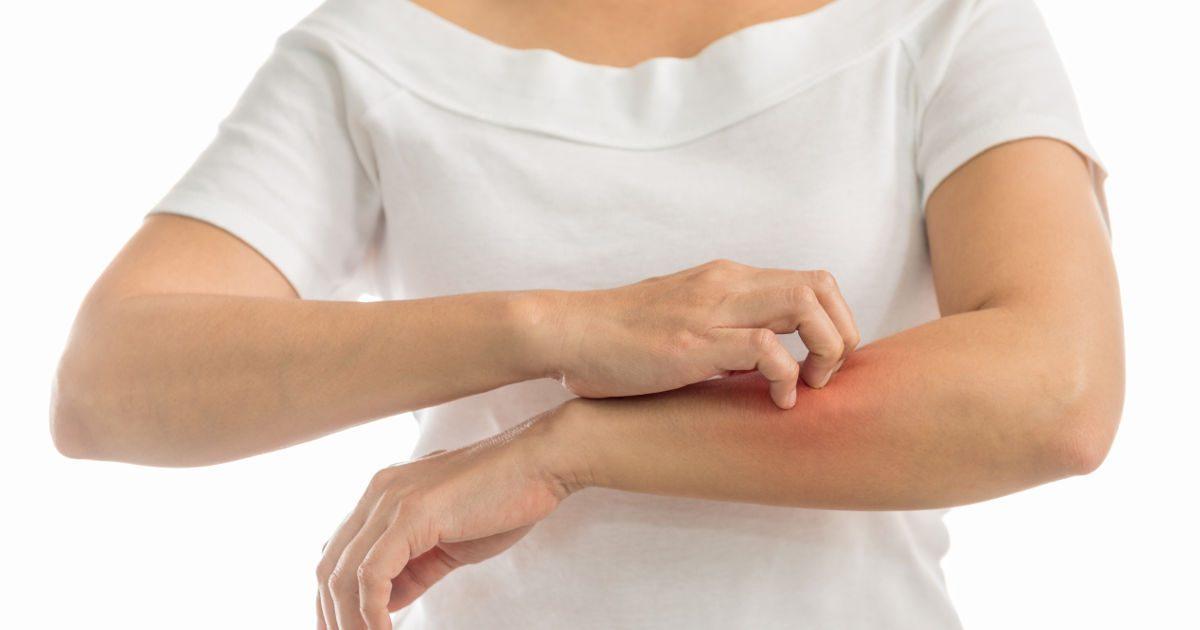 amelyből vörös foltok jelennek meg a karokon és a lábakon