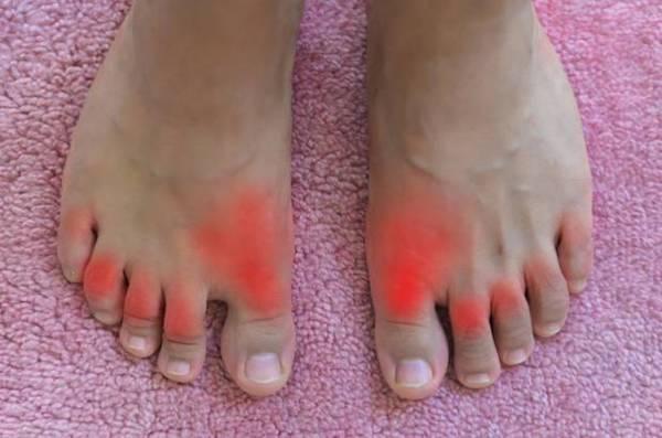 vörös foltok a lábak között nőknél