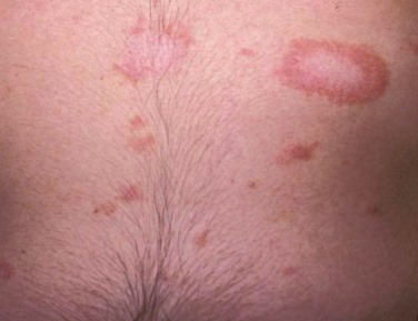 A rózsaszín, a zsindely, a kutikula megfosztása: tünetek, kezelés
