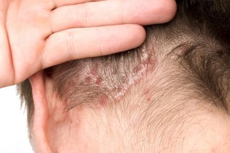 A seborrheás ekcémás fejbőr kezelése
