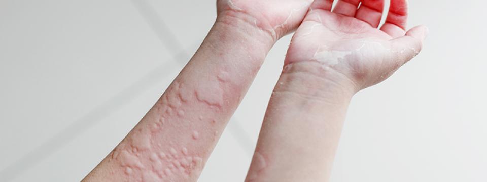 a kéz bőrén vörös foltok fotó hogyan kell kezelni)
