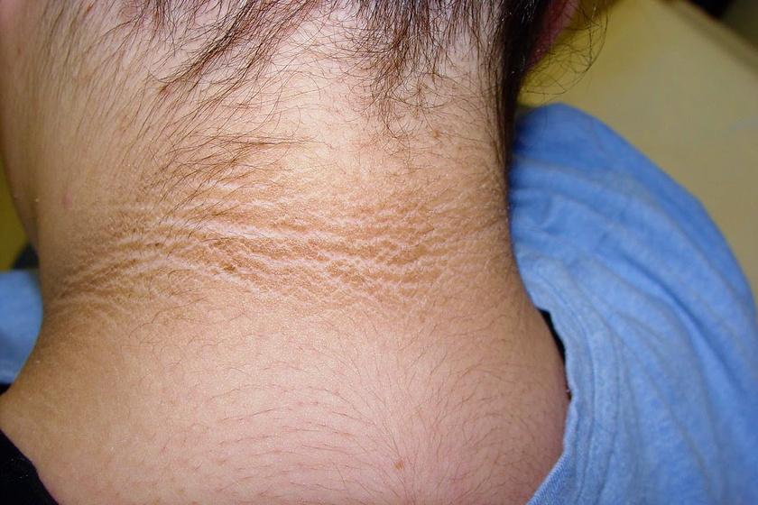 a lábakat vörös foltok és viszketés borítja vörös foltok jelennek meg a bőr vakarása után