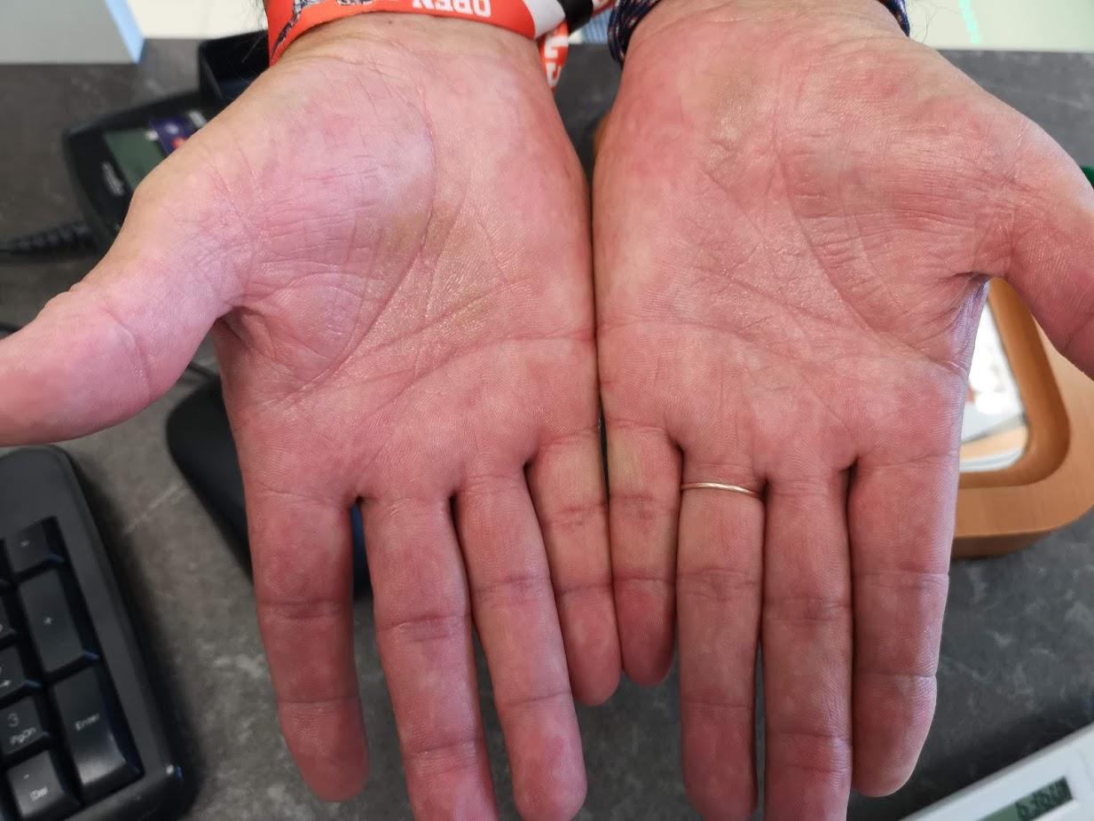 piros sűrű folt a lábán fáj pikkelysömör a fej kezelésében népi gyógymódokkal