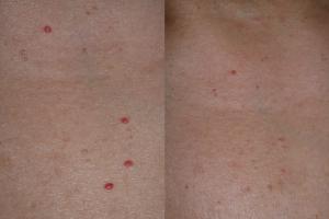 pikkelysömör kezelése homeopátiás gyógyszerekkel vörös érfoltok a lábakon kezelés