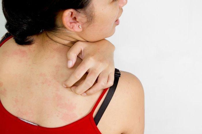Dr. Gergely Gyöngyi bőrgyógyász szakfőorvos lapja - Fényezelések