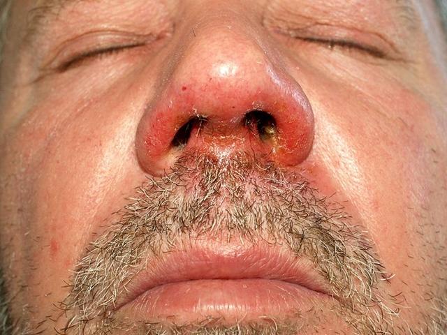 vörös foltok az arcon a férfiak fotó hogyan kell kezelni