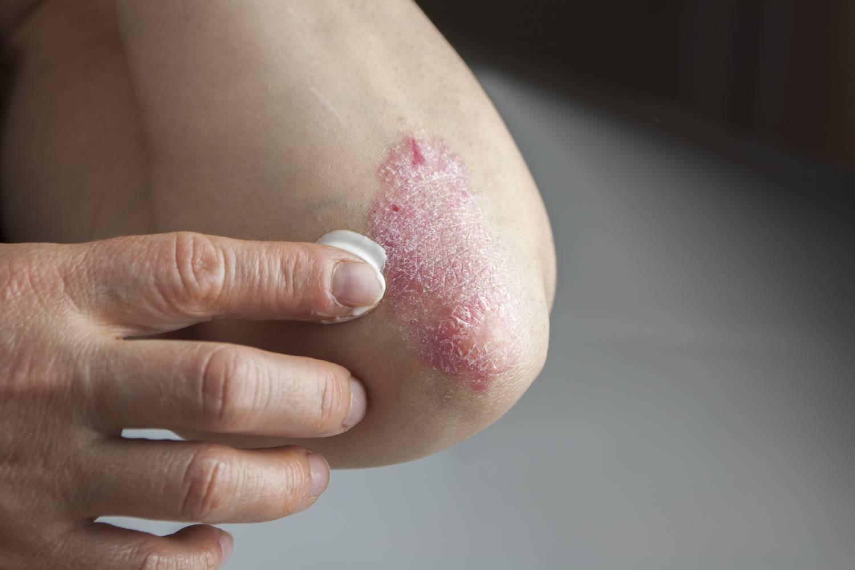 kézi pikkelysömör kezelése pegano szerint nagy piros folt a fotón