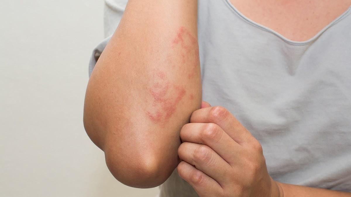 bőrkiütés vörös foltok formájában, viszketés a nyakon