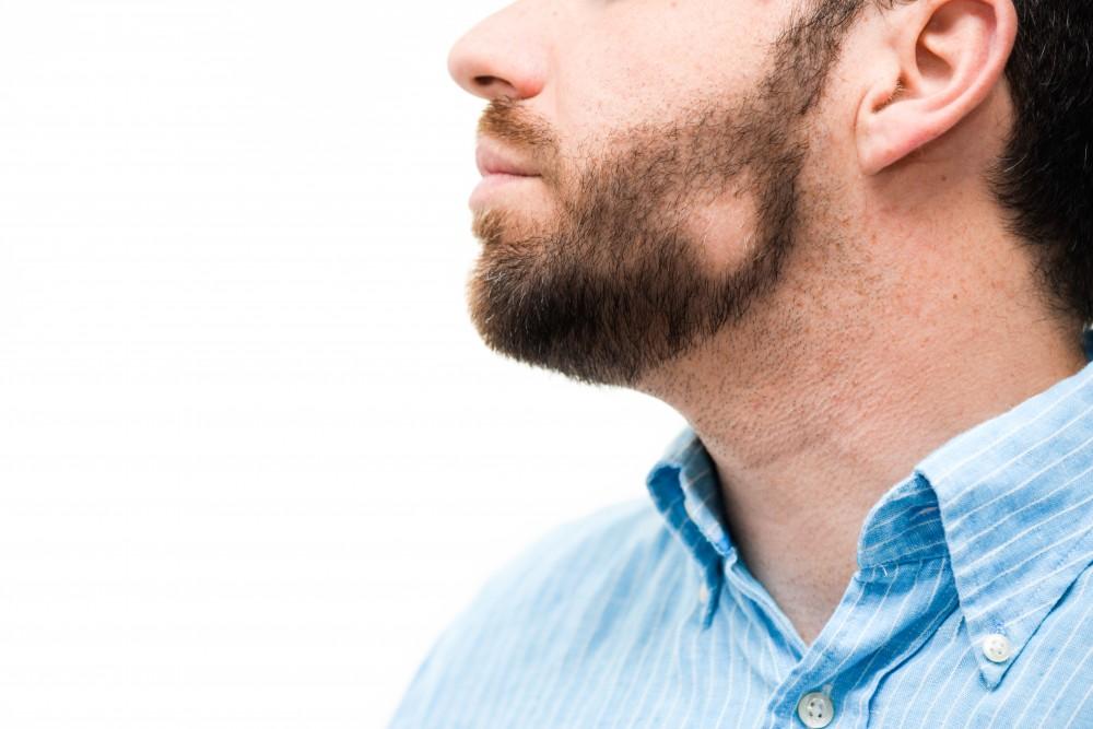 vörös foltok a szakáll kezelésén
