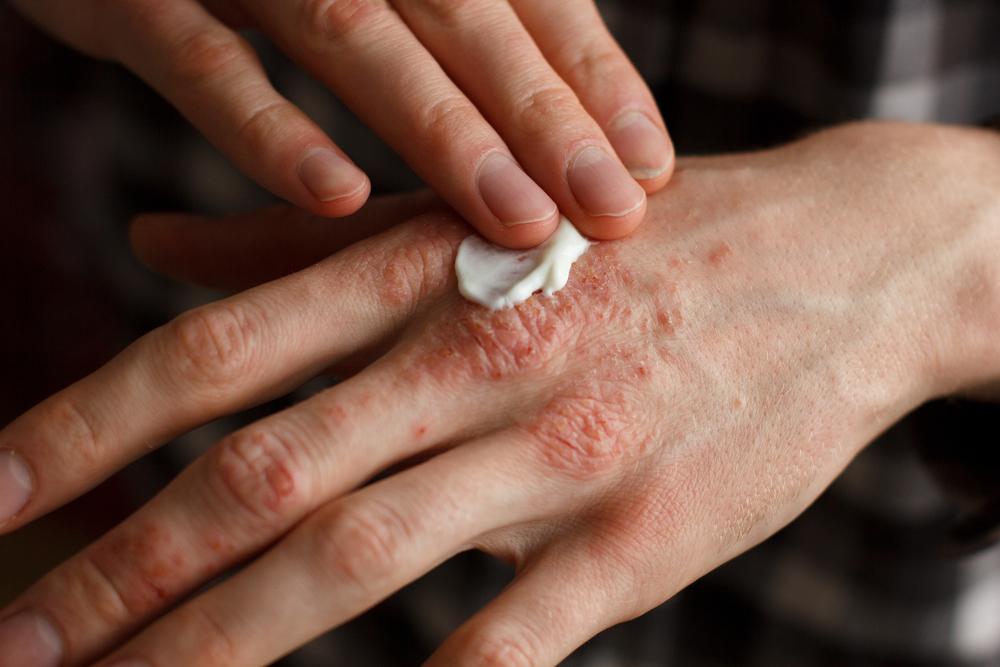 gyógyszerek pikkelysömör kezelésére krém