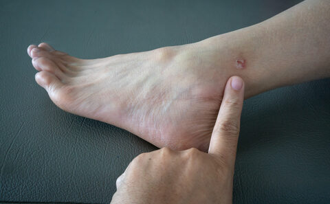 vörös foltok a lábak vénáin a lábak krónikus visszerei vörös foltok