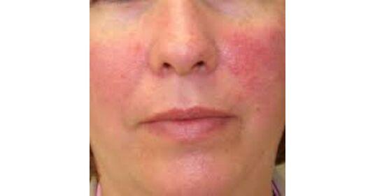 népi gyógymódok a vörös foltok arcán