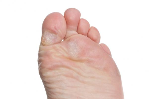 a lábujjakon lévő piros foltok gombák pikkelysömör segít gyógyítani
