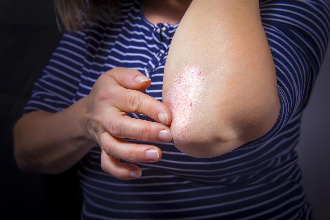 pikkelysömör és annak kezelése csepegtetőkkel az arcbőr hámlik és vörös foltok borítják