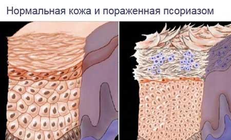 kenőcs bőrsapka pikkelysömörhöz