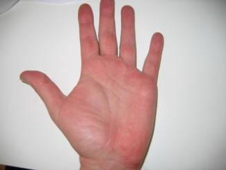 vörös folt jelent meg a kézen)