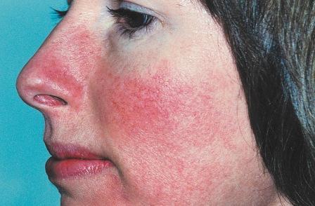 atópiás dermatitis vörös foltok az arcon krém a pikkelysömörtől a