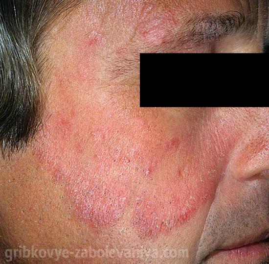 vörös foltok jelennek meg folyamatosan az arcon)