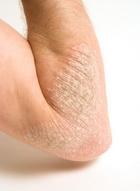 Az alternatív gyógyászat gyógyíthatja a pikkelysömör pikkelysömör kezdeti stádium tünetei és kezelése