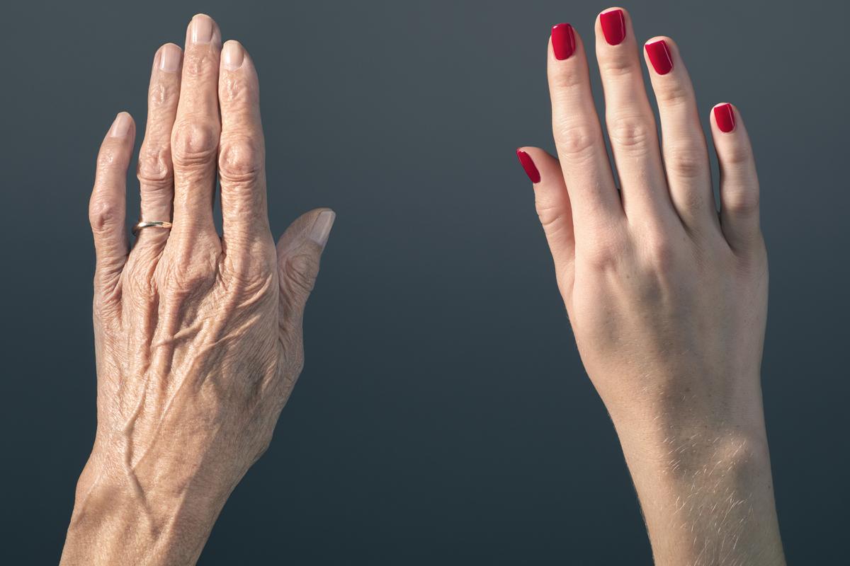 vörös foltok sütnek a kézen