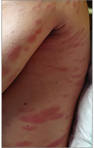 bőrkiütés vörös foltok formájában az arc felnőtt fotóin)