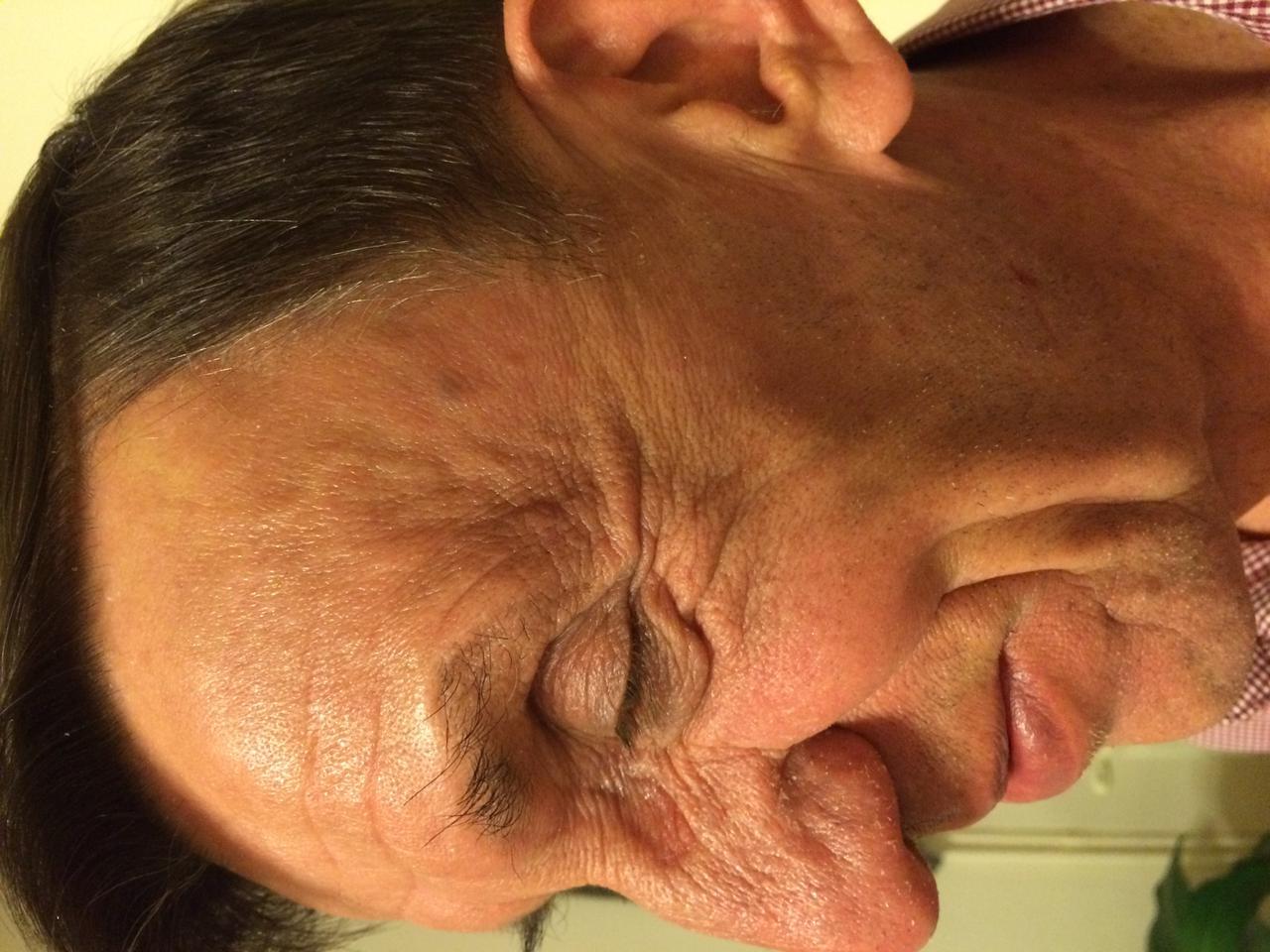 milyen kenőcsöt kell használni a fej psoriasisára)