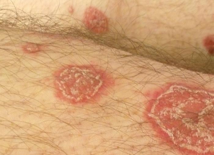 pikkelysömör NSAID kezelés