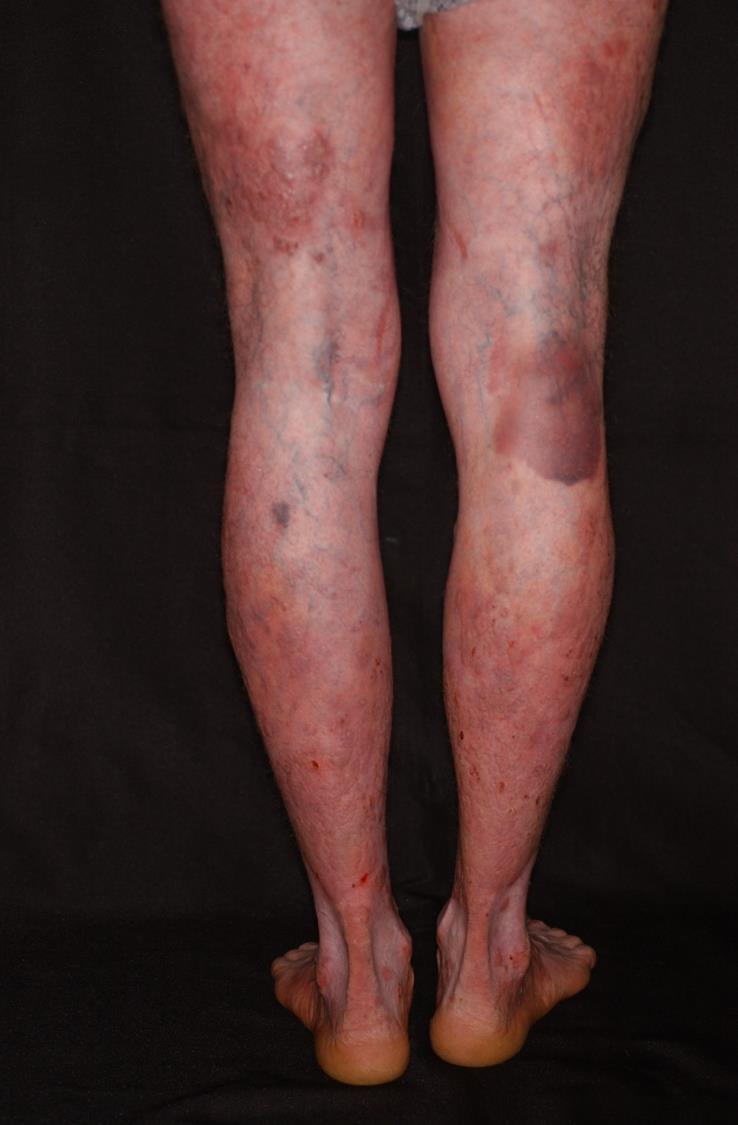 psoriasis vulgaris progresszív stádiumú kezelés vörös foltok és a bőr hámlása