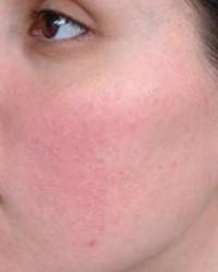 a bőr alatt vörös foltok az arcon