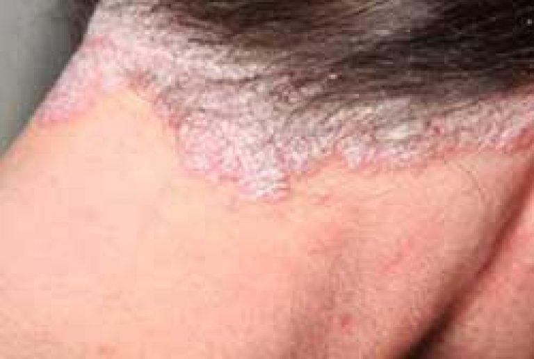 A szögek pikkelysége - Betegség