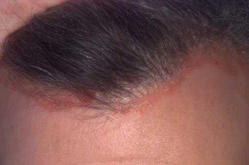 fejbőr pikkelysömör tünetei és kezelése