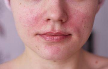 vörös foltok az arcon hámozódnak és)