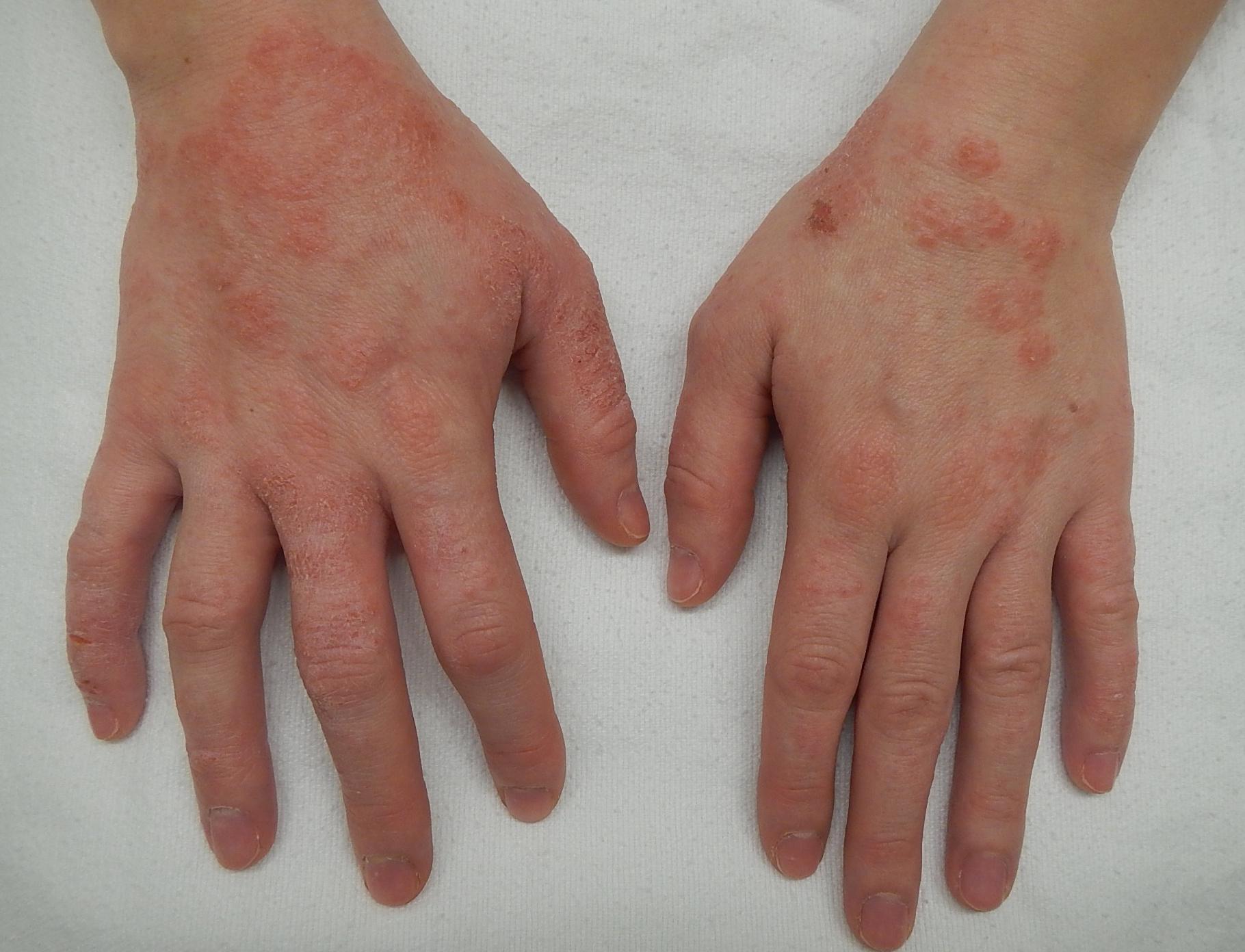 vörös foltok a kezek bőrén viszket fénykép