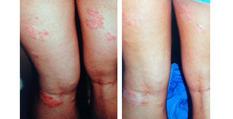 Por-allergia kezelési tippek és trükkök - Tünetek