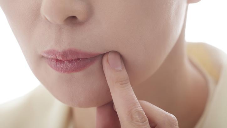 vörös foltok jelentek meg a száj körüli arcon