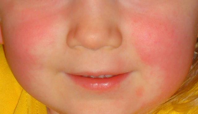 fejfájás és arc vörös foltokkal)