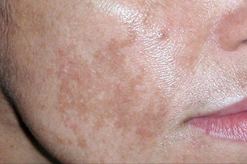 hogyan lehet otthon gyorsan eltávolítani a vörös foltokat az arcról)
